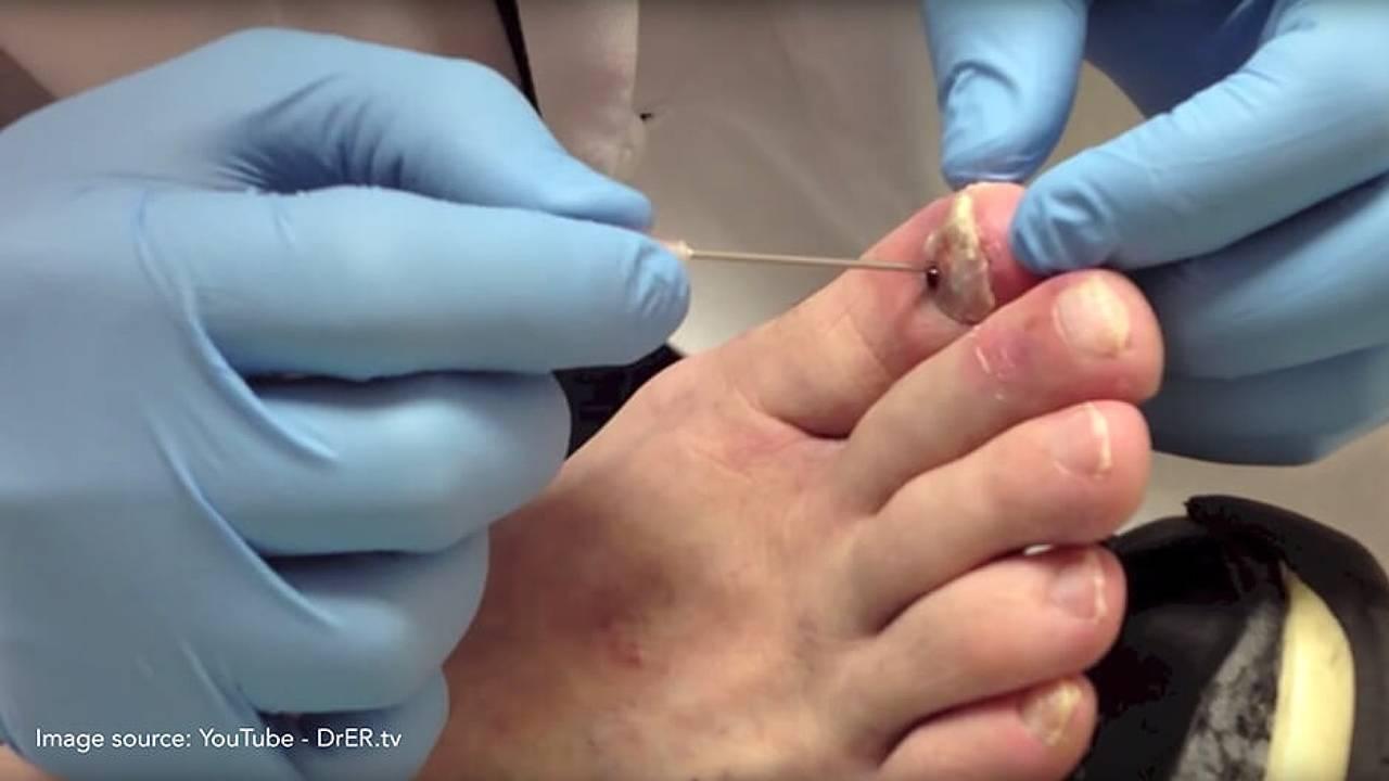 Nail Trauma   Customised insoles Treatment