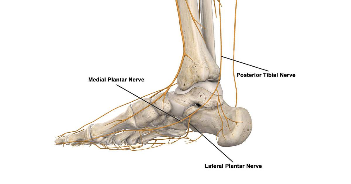 plantar-nerve-neuritis-thumbnail