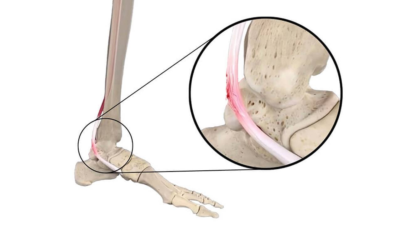 PTTD Posterior Tibial Tendon Dysfunction Skeleton Feet