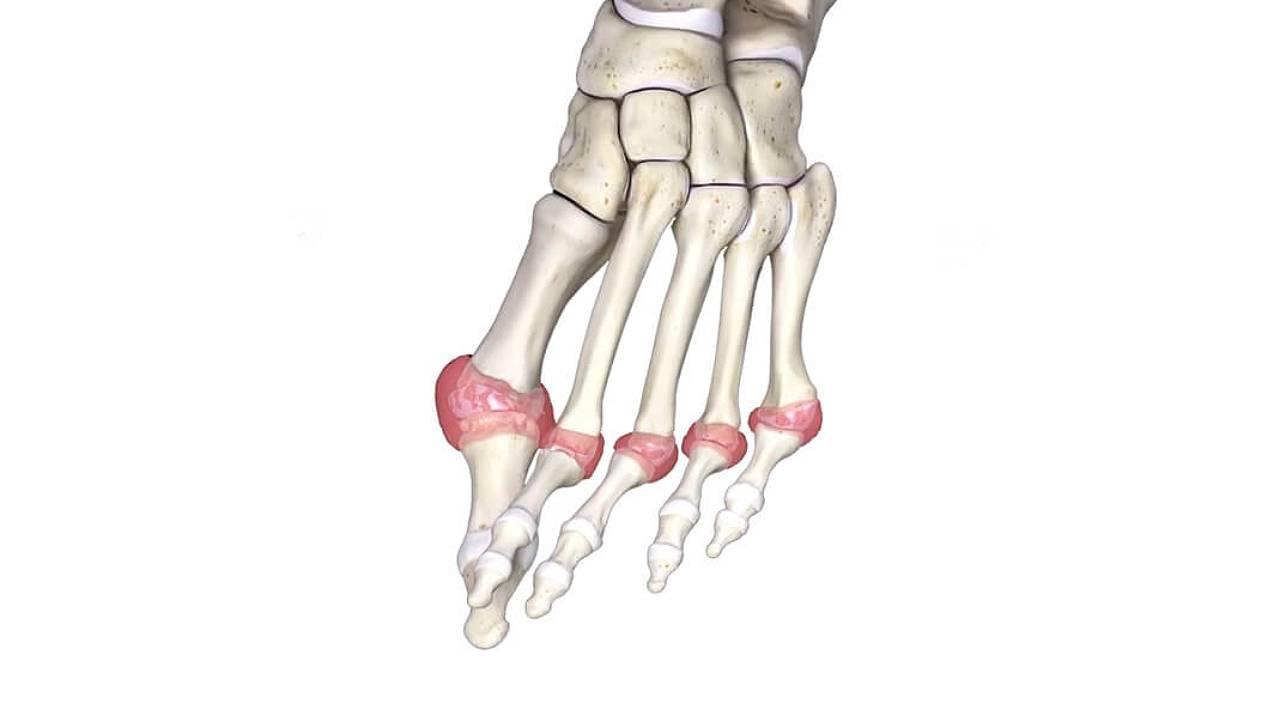 East Coast Podiatry   Skeleton Model of Rheumatoid Arthritis