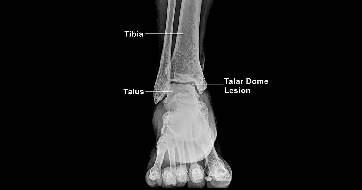 talar-dome-injuries-thumbnail