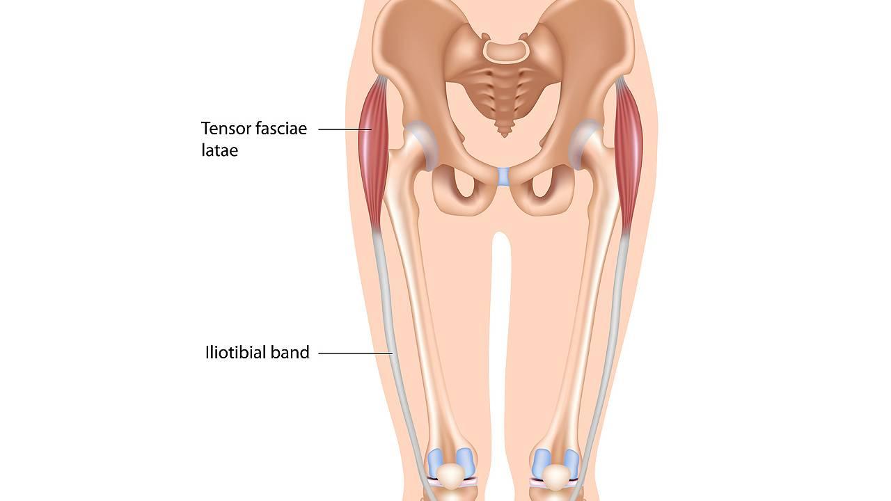 Iliotibial band syndrome