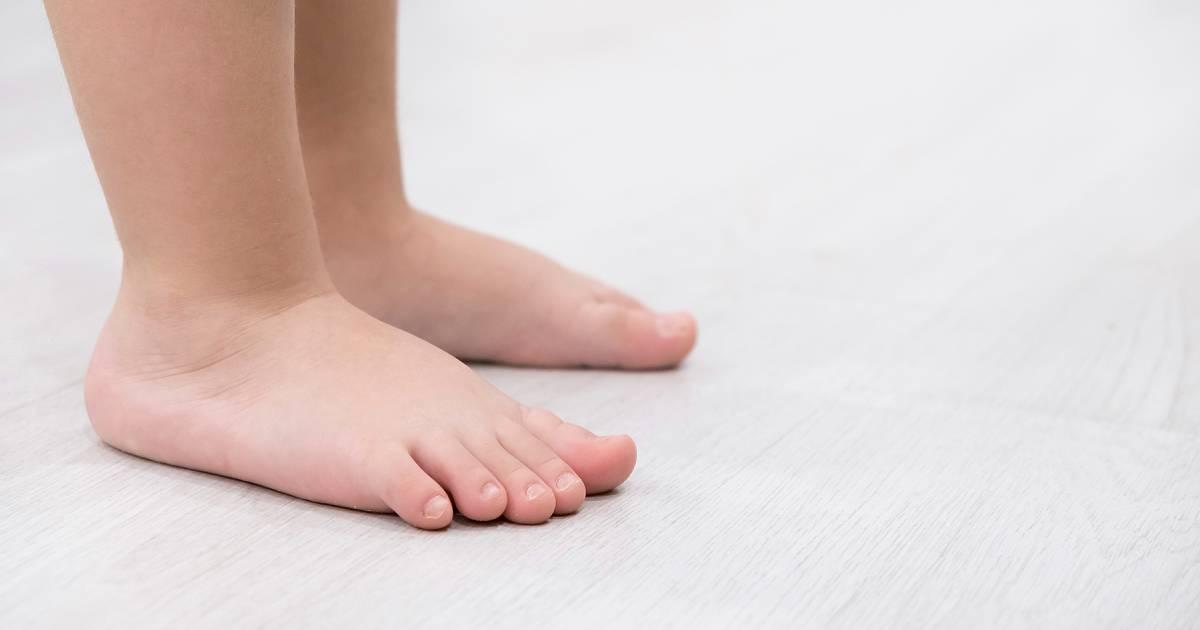 Flat Foot Child
