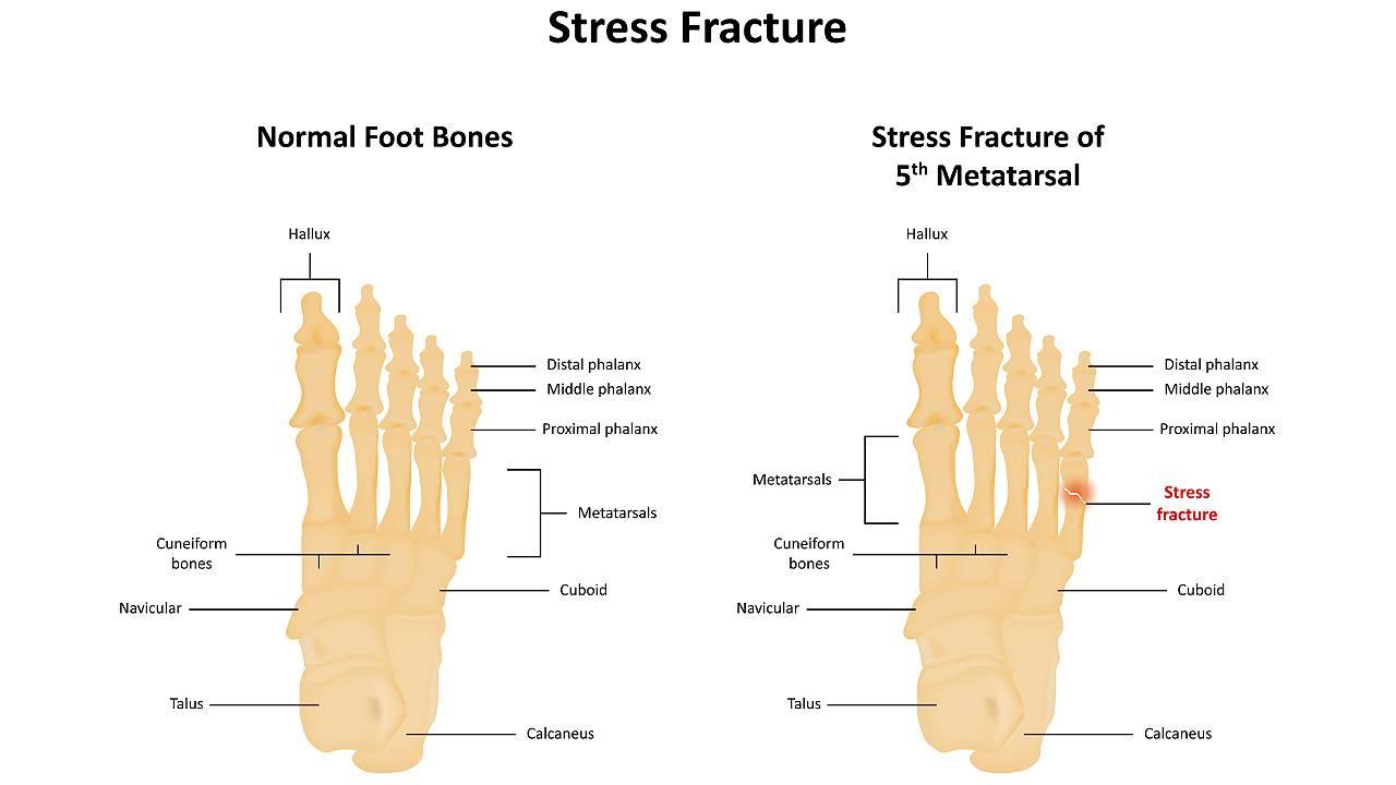 Fractures Metatarsals